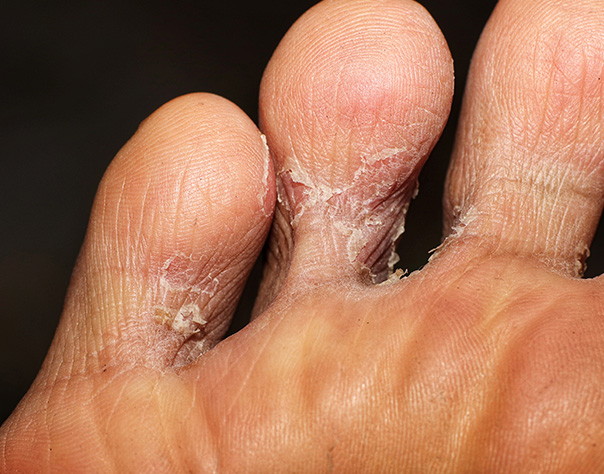 Athlete's Foot/Tinea Pedis
