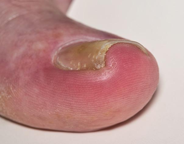 Ingrown Nails