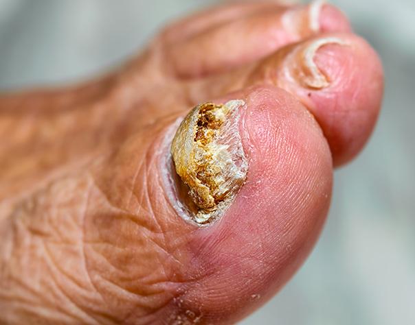 Toe Nail Fungus